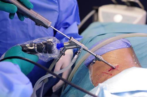 Лечение межпозвоночной грыжи в Минске - МедикОРТ
